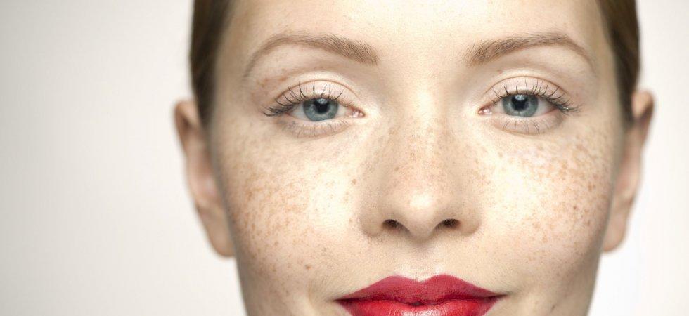 Beauté : allez-vous succomber aux tâches de rousseur temporaires ?