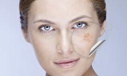 10 produits pour dire adieu à l'acné
