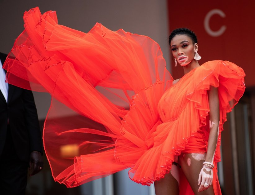 Winnie Harlow n'a pas froid aux yeux