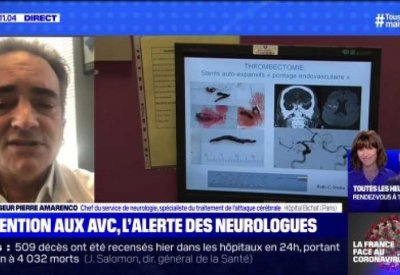 Attentions aux AVC, l'alerte des neurologues - 02/04