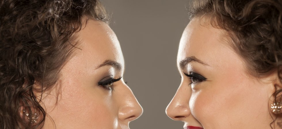 Une nouvelle technique de rhinoplastie mise au point