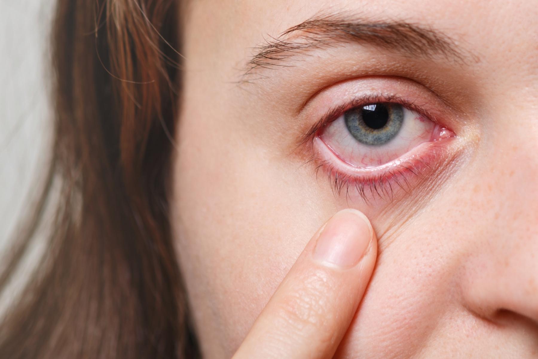 collyre fatigue oculaire